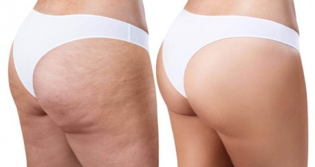 get-rid-of-cellulite-with-these-easy-and-effective-home-remedies